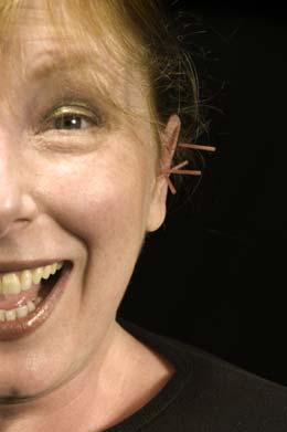 Een vrouw met acupunctuurnaalden in haar oor